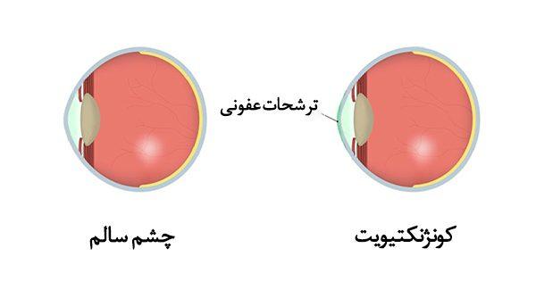 كونژنكتيويت يا التهاب ملتحمه