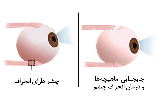 strabismus انحراف چشم استرابیسم