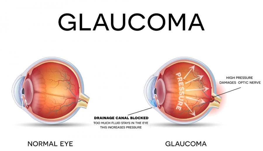 آب سیاه - گلوکوم - glaucoma