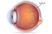 Retinal بیماری های شبکیه چشم