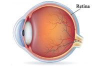 Retina Diseases