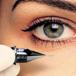 تاتوی چشم - دکتر افتخاری