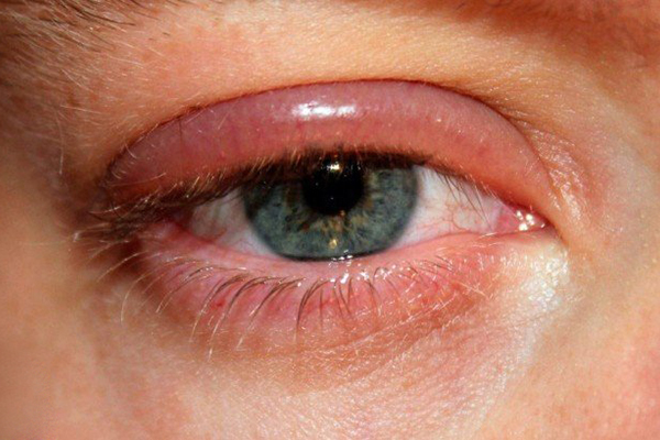 بلفاریت blepharitis