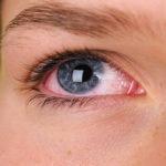 مراقب عفونتهای ویروسی چشم باشید