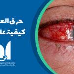 حرق العين: كيفية علاجه