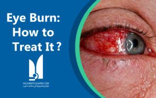 Eye Burn